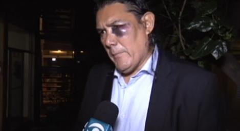 Jairo Alberto Arciniegas fue golpeado por Rafael Dudamel. Foto Subrayado, tomada de Ovación Digital.